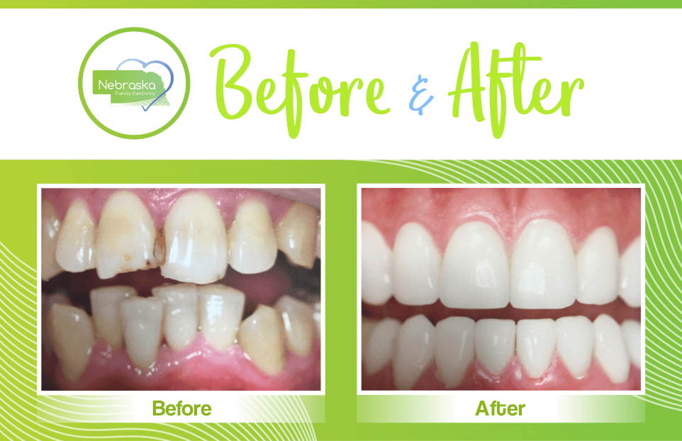 NFD before after crooked teeth from dentist in lincoln NE near me Dr. Sullivan