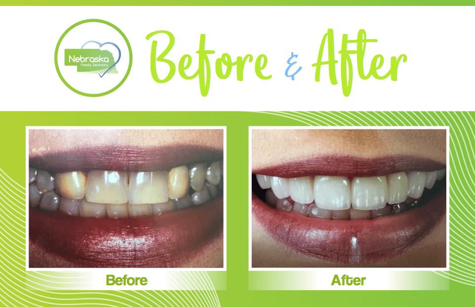 veneer before and after dentist in lincoln NE near me Dr. Sullivan