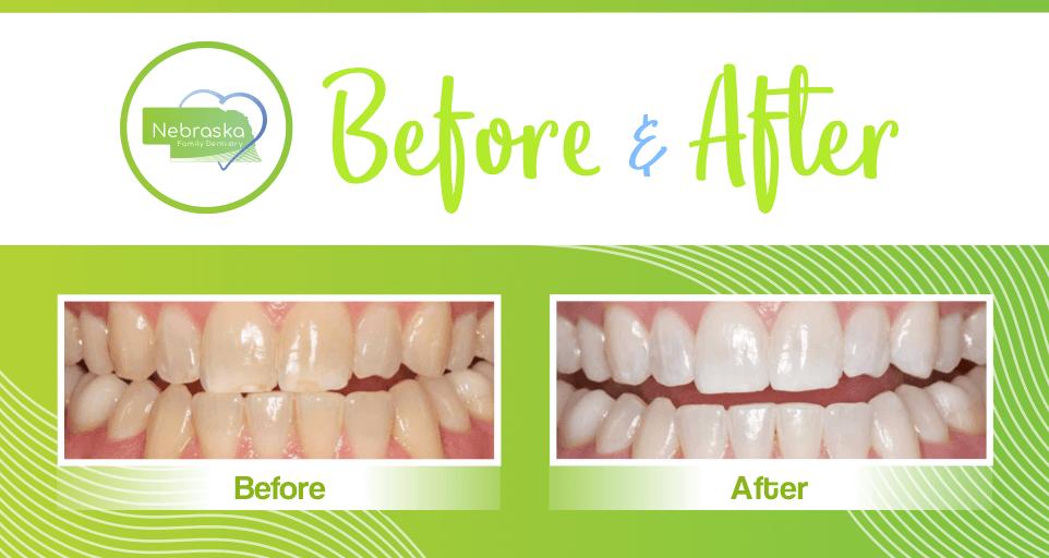 NFD before after teeth whitening dentist in lincoln NE near me Dr. Sullivan