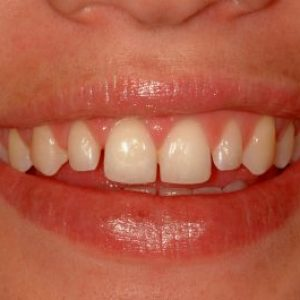 veneers patient from dentist in lincoln NE near me before