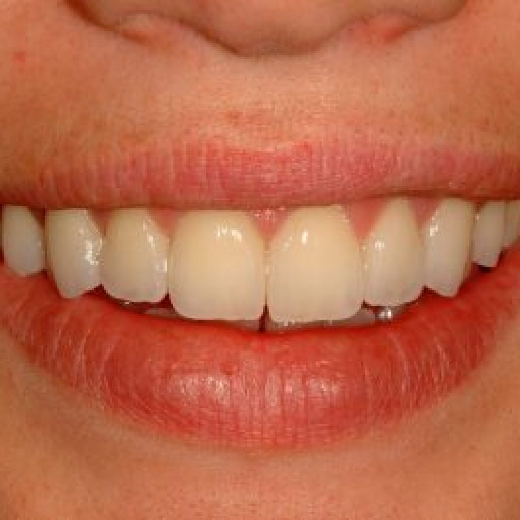 veneers patient from dentist in lincoln NE near me after