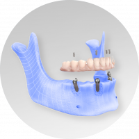 hybrid prosthesis example using lower jaw from dentist in lincoln NE near me Dr. Sullivan