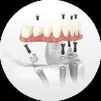 implant dentistry hybrid prosthesis dentist in lincoln NE near me Dr. Sullivan